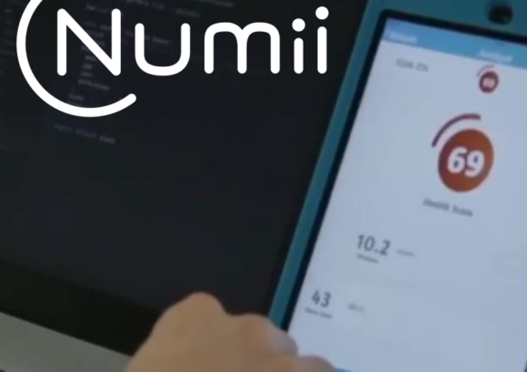 The features | Numii®